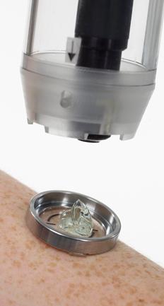 Microscopia Confocal de Reflectância - Dra. Lílian Licarião (CRM-SP 140.754| RQE 40.207)