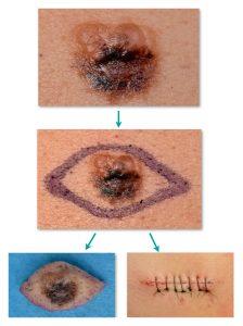 foto biópsia excisional de melanoma - Dra. Lílian Licarião
